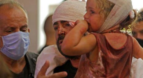BEIRUT/UNICEF: 3 BAMBINI MORTI, ALMENO MILLE FERITI E 31 RICOVERATI