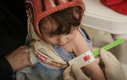 Allarme Agenzie Onu: sempre meno tempo per evitare la carestia in Yemen