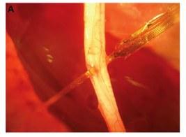 SALUTE: NUOVE PROSPETTIVE DI CURA DEL DIABETE CON MINI ELETTRODI 3D