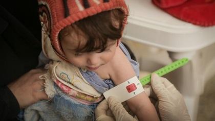 Malnutrizione acuta in Africa: l'allarme dell'Unicef