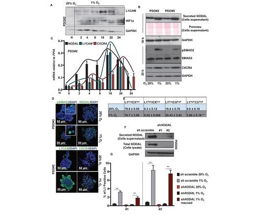 Tumore al colon: dal Cnr nuovo meccanismo alla base della formazione delle metastasi