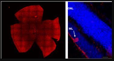 Parkinson: team di ricercatori italiani individua nuovo potenziale biomarcatore