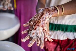 COVID-19/ L'ALLARME UNICEF - OMS: IN 60 PAESI A PIÙ ALTO RISCHIO 1 MILIARDO DI PERSONE NON HA SERVIZI PER LAVARSI LE MANI